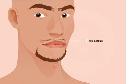 Tinea barbae umumnya terjadi pada kulit wajah dan leher yang ditumbuhi rambut.