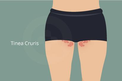 Tinea crusis merupakan infeksi jamur yang menyerang pangkal paha atau selangkangan