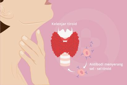 Salah satu penyebab umum tiroiditis adalah penyakit Hashimoto