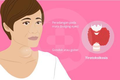 Tirotoksikosis adalah kondisi di mana terdapat hormon tiroid yang berlebih pada aliran darah dalam tubuh