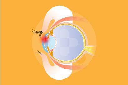 Trikiasis merupakan tumbuhnya bulu mata tumbuh ke arah dalam