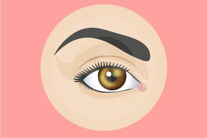 Ulkus kornea dapat mengganggu penglihatan hingga menyebabkan kebutaan