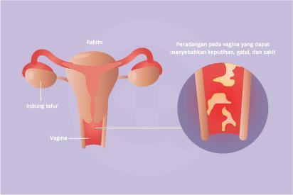 Vaginitis adalah infeksi atau peradangan pada vagina yang dapat menyebabkan keputihan, gatal, dan sakit.