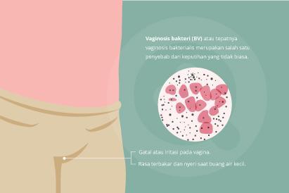 Vaginosis bakteri bisa memicu gatal pada vagina serta nyeri saat buang air kecil