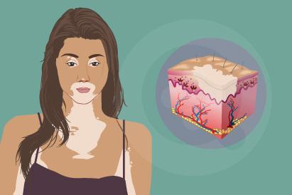 Vitiligo adalah penyakit kulit yang tidak menular