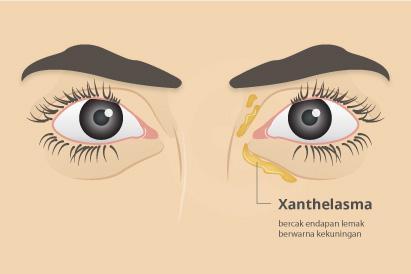 Xanthelasma ditandai dengan endapan lemak berwarna kuning di antara kelopak mata dan hidung