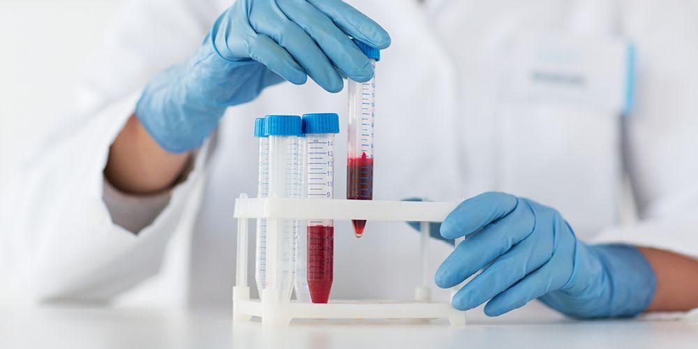 Pemeriksaan sampel darah diperlukan untuk melakukan analisa gas darah