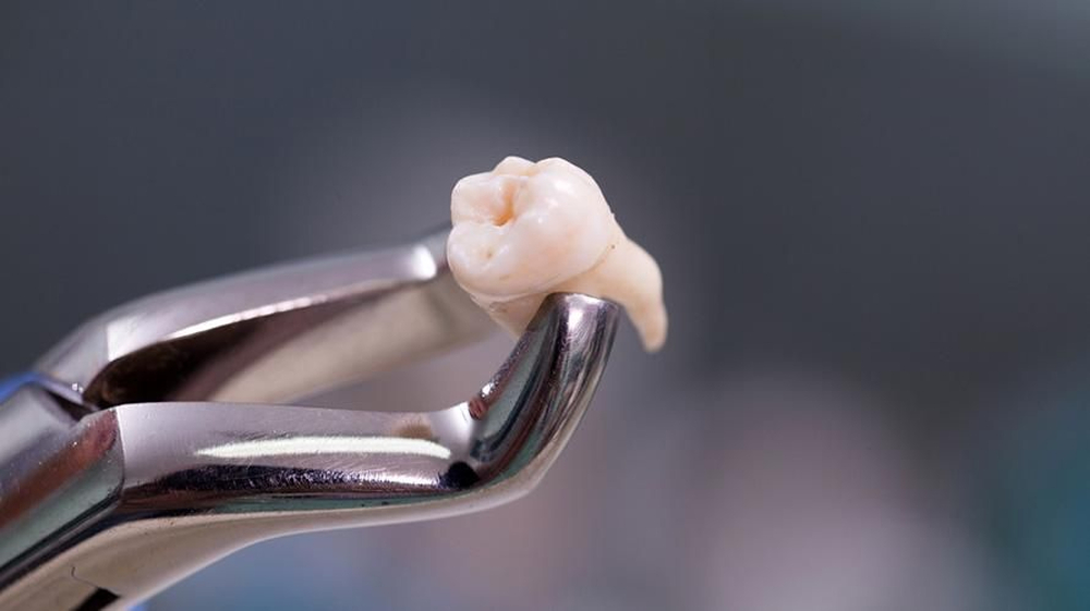 Cabut gigi harus dilakukan oleh dokter gigi