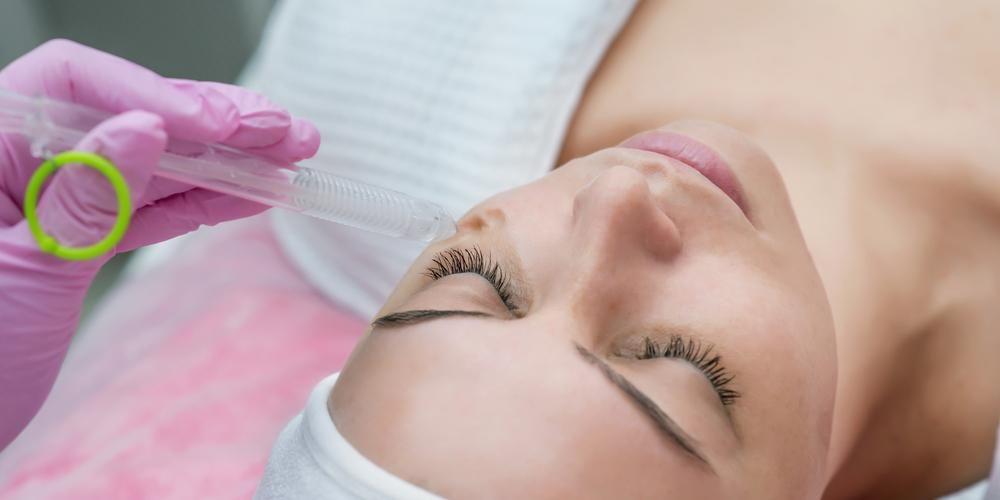Chemical peel bisa memicu regenerasi kulit.