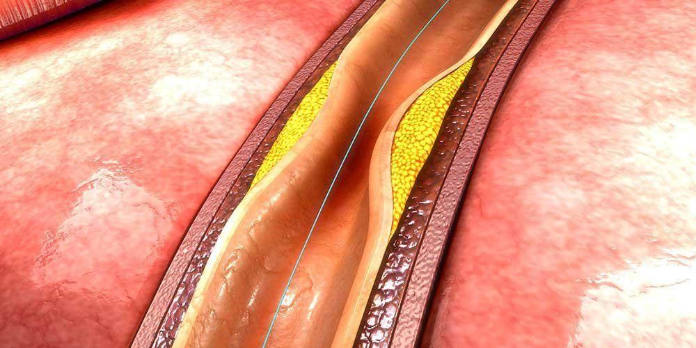 Kateterisasi jantung melibatkan proses memasukkan selang tipis (kateter) dalam pembuluh darah