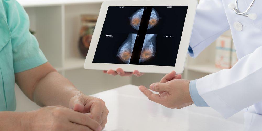 Mastektomi adalah operasi untuk mengobati kanker payudara