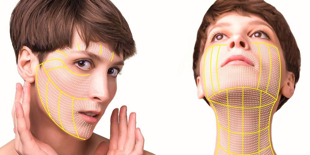 Neck lift bisa dilakukan bersama brow lift, transfer lemak, serta operasi kelopak mata