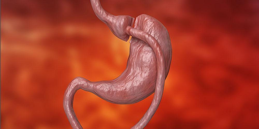 Operasi bariatrik mampu memperkecil ukuran lambung dan mengurangi bobot tubuh.