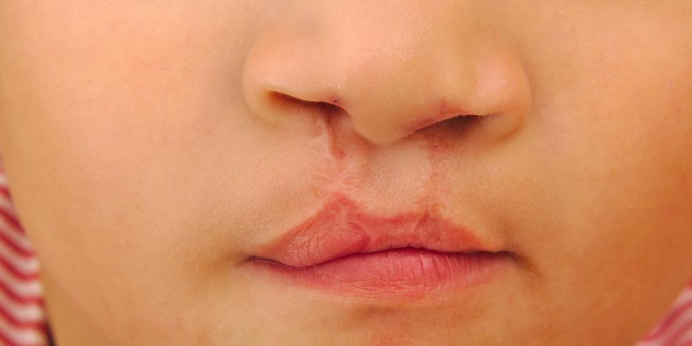 Operasi bibir sumbing akan memperbaiki penampilan sekaligus fungsi rongga mulut