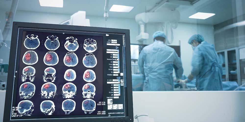 Operasi otak sadar perlu dilakukan oleh tim dokter