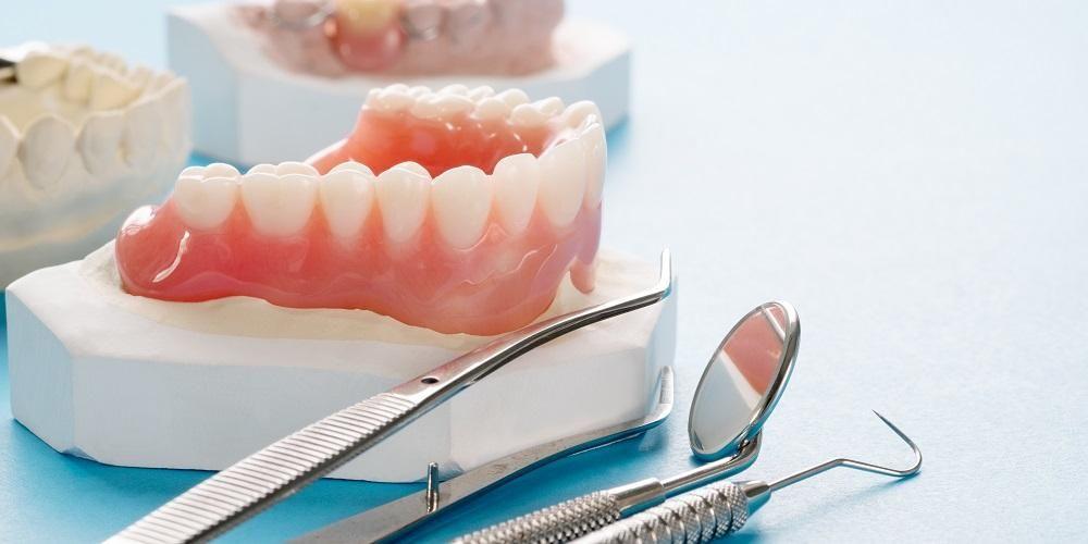 Pemasangan gigi tiruan bisa dilakukan secara menyeluruh maupun sebagian.
