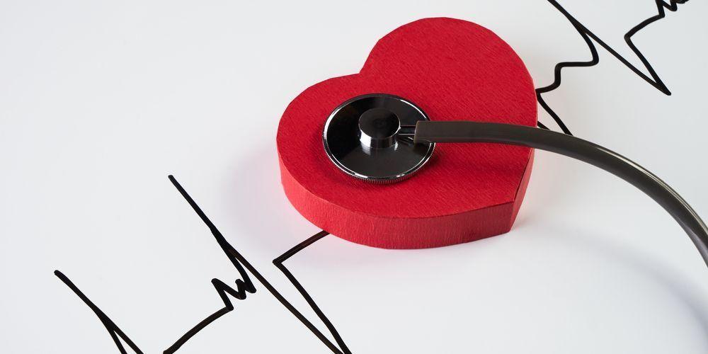 Aritmia termasuk kondisi yang butuh pemeriksaan jantung & pembuluh darah