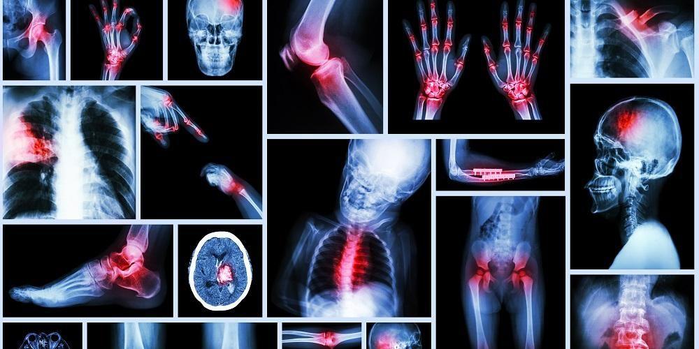 Rontgen adalah pemeriksaan dengan sinar-x, untuk melihat kondisi berbagai organ dalam tubuh.