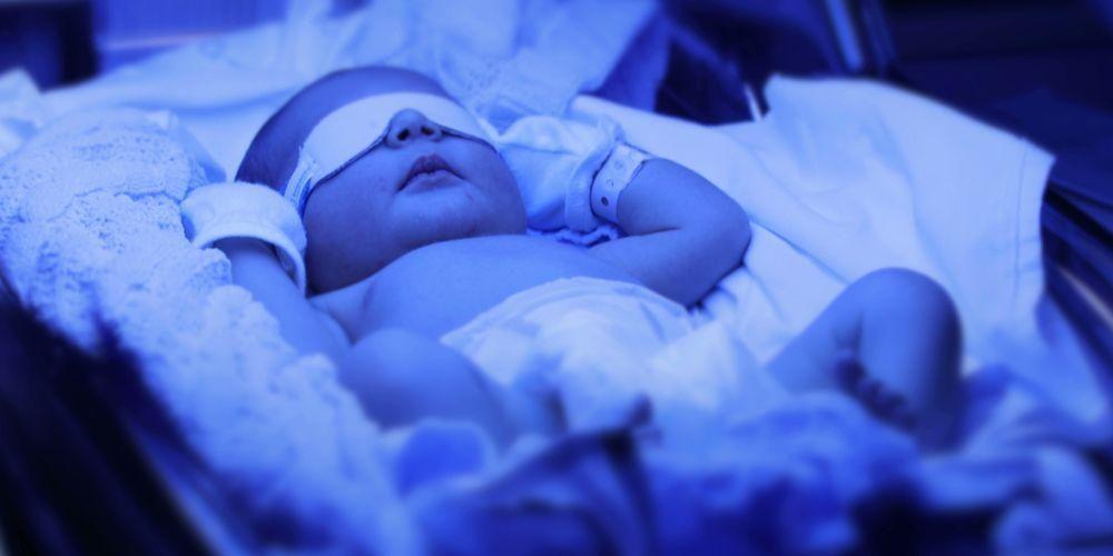 Terapi cahaya atau fototerapi juga bisa menjadi penanganan untuk bayi kuning