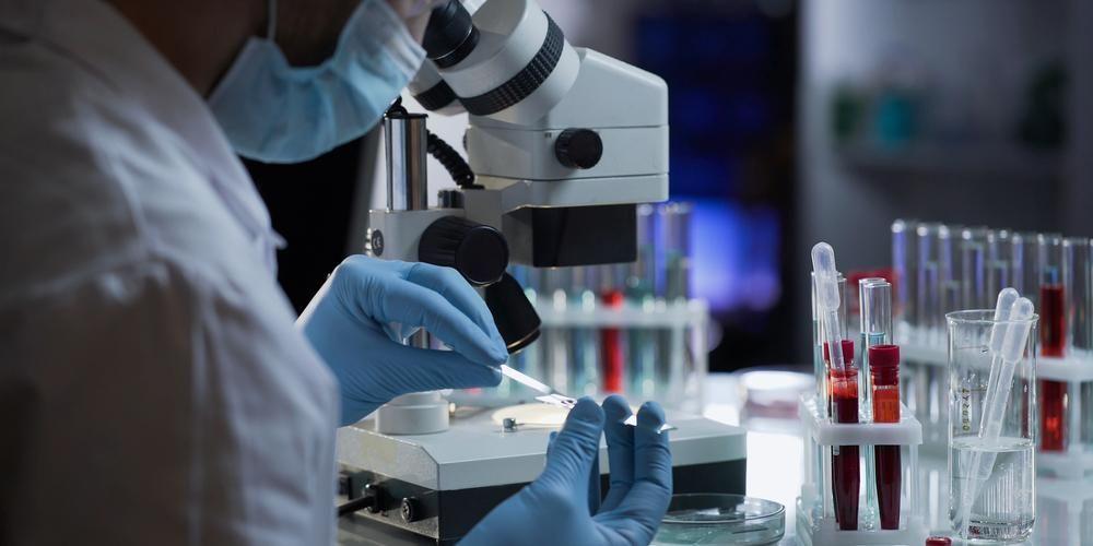 Tes antibodi dilakukan melalui pengambilan sampel darah.