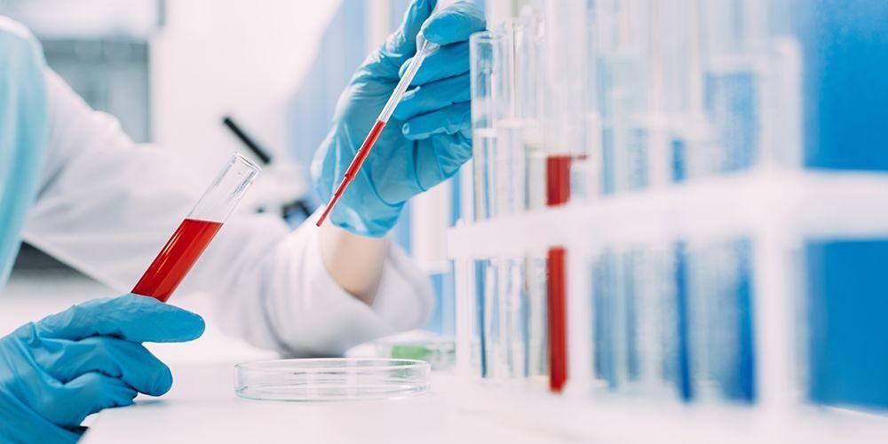 Tes fosfat menggunakan sampel darah yang diperiksa di lab