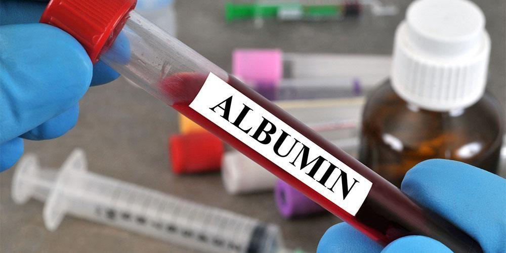 Tes kadar albumin dilakukan dengan pengecekan sampel darah pasien