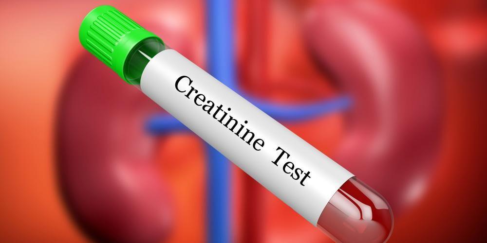 Pemeriksaan sampel darah dibutuhkan untuk melakukan tes kadar kreatinin