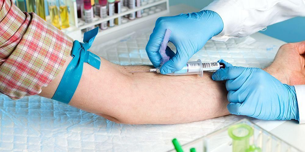 Tes serologi dilakukan dengan mengambil sampel darah untuk diperiksa di laboratorium