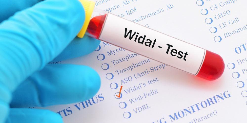 Tes widal dilakukan dengan mengambil sampel darah pasien