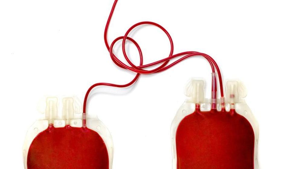 Transfusi tukar atau exchange transfusion akan mengganti darah pasien dengan darah pendonor