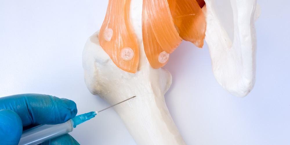 Transplantasi sumsum tulang mampu menggantikan sumsum tulang yang rusak dengan sel punca sehat.