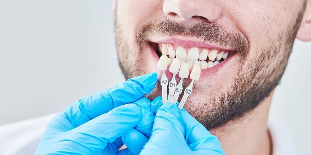Veneer gigi adalah prosedur pelapisan gigi menggunakan bahan tertentu agar bentuk gigi terlihat lebih baik