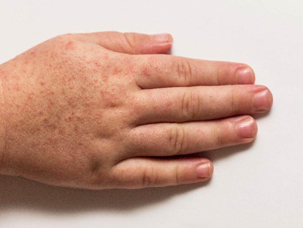 Betamethasone salep digunakan untuk pengobatan pada kulit kemerahan, gatal, dan bengkak.