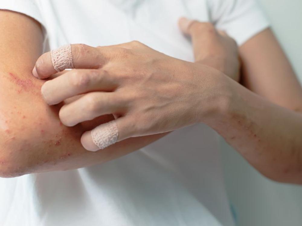 Chlorpheniramine digunakan untuk meredakan ruam dan gatal-gatal
