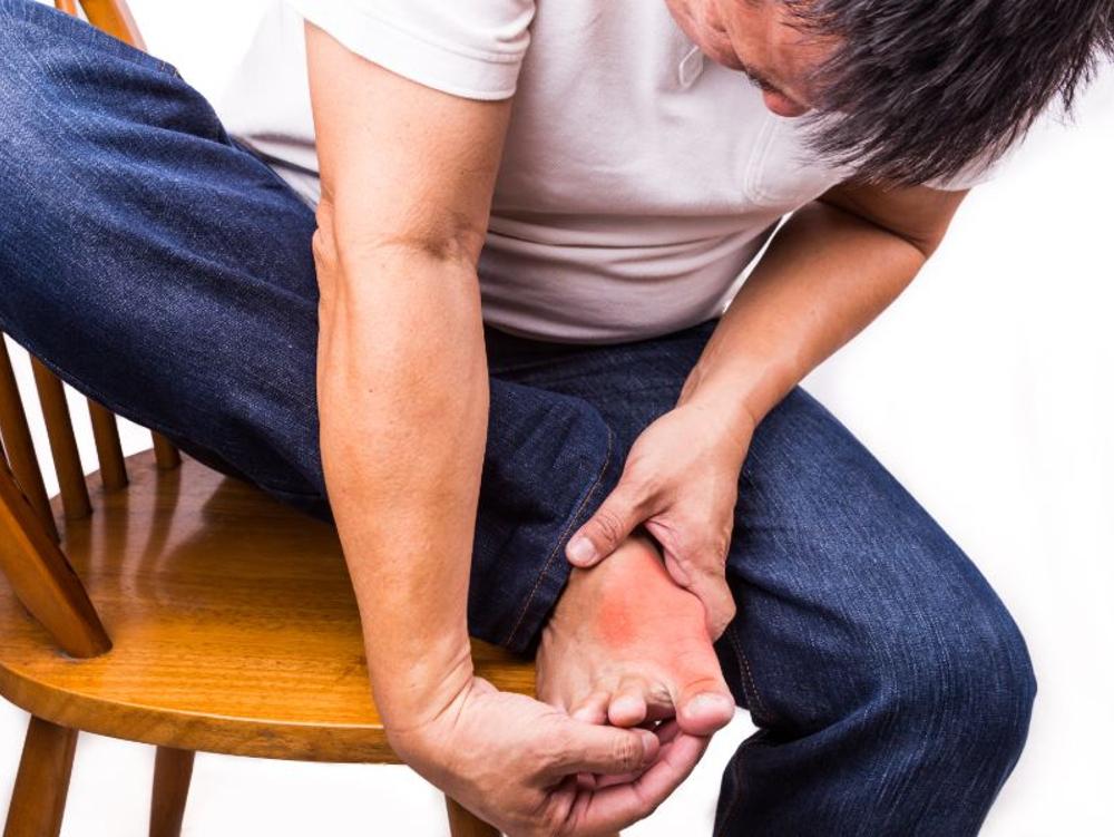 Colchicine adalah obat yang dapat mencegah penyakit asam urat