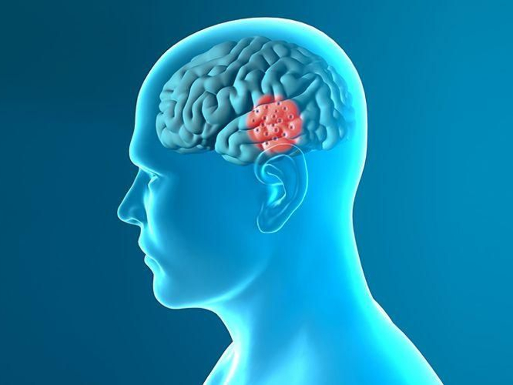 Donepezil hanya meningkatkan kemampuan daya ingat penderita alzheimer