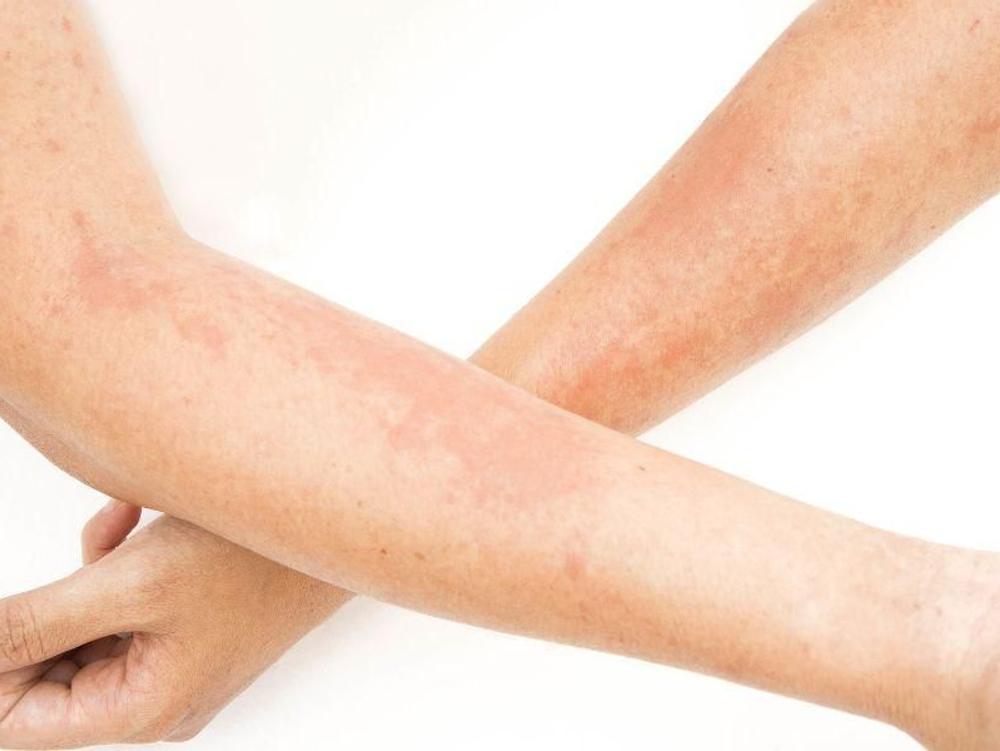 Feksofenadin dapat meredakan gejala alergi, seperti mata gatal dan berair, gatal pada kulit, dan bersin