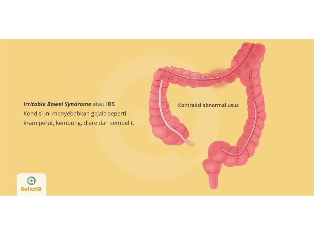 Irritable bowel syndrome dapat disebabkan adanya infeksi usus yang berat akibat kelebihan mikroflora.