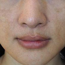 Bercak hitam di bibir bisa disebabkan oleh alergi