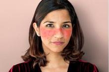 Lupus dikategorikan sebagai penyakit autoimun yang menyerang kulit.