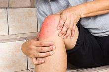 Lutut sakit dapat disebabkan oleh osteoartritis