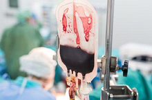 Perdarahan post partum setelah melahirkan dapat menyebabkan komplikasi