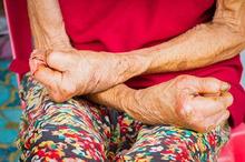 Penyakit kusta menular atau tidak dari sentuhan