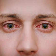 Penyakit mata konjungtivitis ditandai dengan mata merah