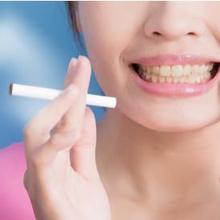 Cara menghilangkan nikotin di gigi