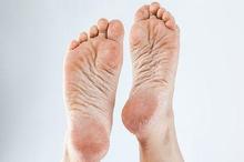 Penebalan kulit terjadi saat kulit terlalu sering bergesekan