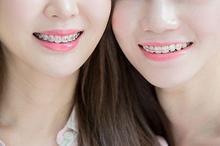6 jenis behel untuk merapikan posisi gigi tonggos
