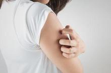 Penyakit kulit menular tidak hanya menyebabkan gatal, namun juga ada gejala lainnya