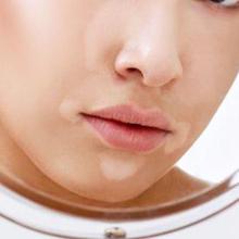 Bercak putih pada kulit dapat disebabkan banyak penyakit kulit, seperti panu hingga vitiligo.