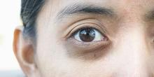 Kemunculan kantung mata memang tidak membahayakan, tetapi dapat mengganggu penampilan